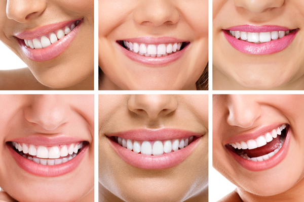 Modulating the composition and characteristics of dental plaque
